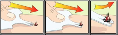 Veilig teken verwijderen tekenkaart